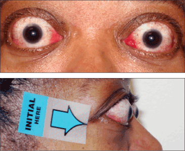 Thyroid Eye Disease Symptoms Tepezza Teprotumumab Trbw