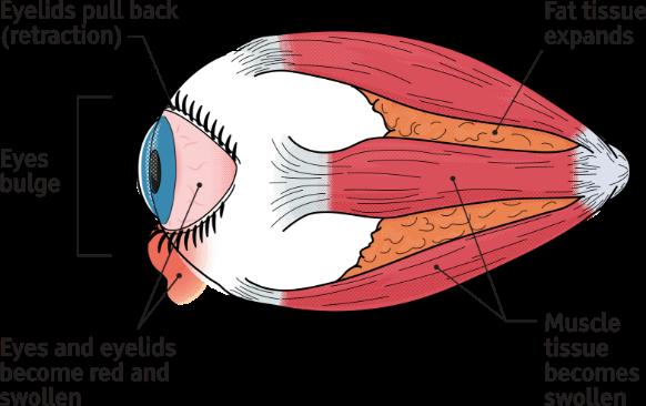 Phases Of Thyroid Eye Disease Tepezza Teprotumumab Trbw