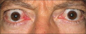 Front view of protruding eyes before treatment