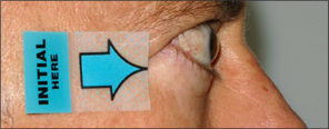 Side view of protruding eyes before treatment