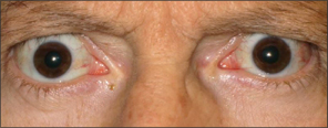Front view of protruding eyes after TEPEZZA treatment