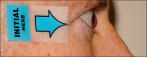 Side view of protruding eyes after TEPEZZA treatment
