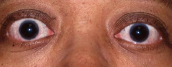 Treat Thyroid Eye Disease Ted With Tepezza Teprotumumab Trbw